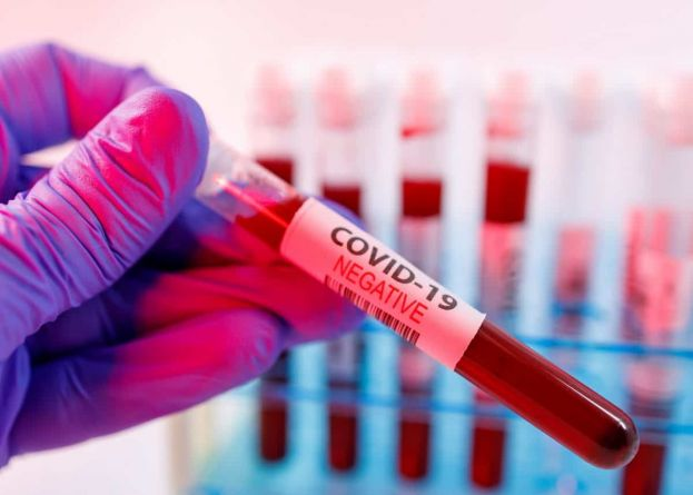 671 579 patients recuperated since the outbreak  of the Corona Virus in South Africa, which translates to a recovery rate of 91.7%.