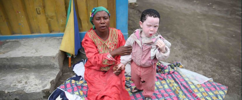 Mother with a child with albinism, Democratic Republic of the Congo.